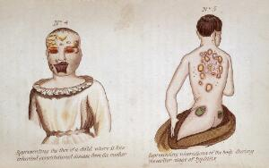 view (Left) Representing the face of a child where it has inherited consitutional disease from the mother. (Right) Representing ulcerations of the body during the earlier stage of syphilis