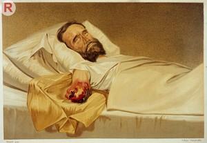 view GANGRENE: Hospital gangrene of an arm stump