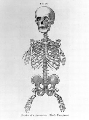 view ABNORMALITIES: Skeleton of a phocomelus.