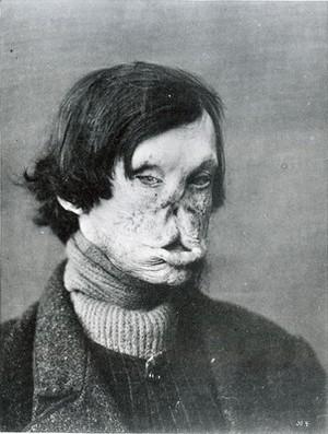 view Tuberous Leprosy