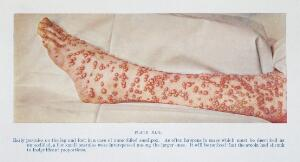 view Early pustules of smallpox