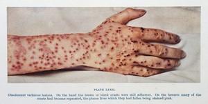 view Obsolescent variolous lesions, smallpox