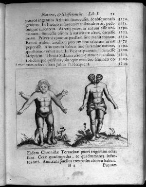 view Two human figures with abnormalities, one with two sets of arms and legs and the other with two heads