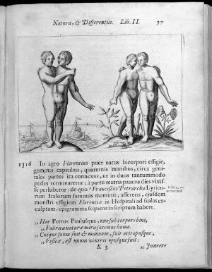 view Two human figures with abnormalities