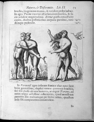 view Two human figures with abnormalities, one male and one female figure