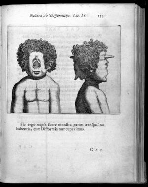 view Two human heads with abnormality, one frontal view with no nose and one profile with large nose