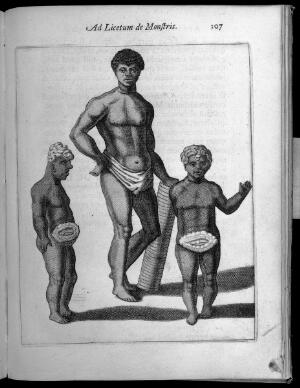 view Three human figures with abnormalities