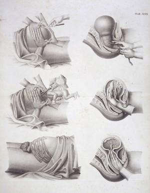 view Childbirth: Cesarean