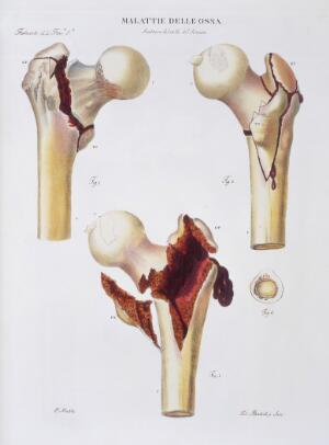 view Diseases of the bones
