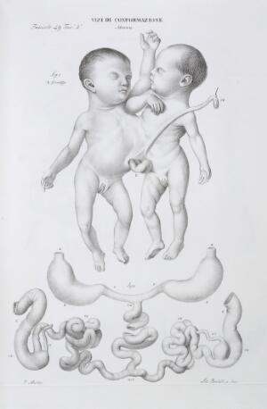 view Abnormalities: Conjoined twins