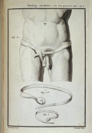 view Diagram showing hernia bandages for a male and infant, Fig. 1. Bandage circulaire droit, garni de ses enveloppes. (Circular binding right, furnished with its envelopes). Fig. 2. Meme bandage place sur le sujet. (Meme binding place on the subject)