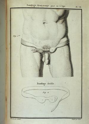 view Diagram of a Hernia bandage on male subject