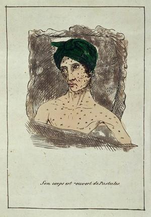 view Hand-coloured engraving: son corps est couvert de pustules.