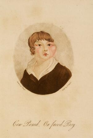 """view Cow Poxed, Ox Faced Boy - illustration to """"Cow-Pox Inoculation No Security Against Small-Pox Infection"""" by W. Rowley."""