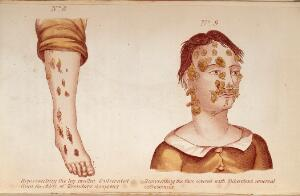 view (Left) Representing the leg swollen and ulcerated from the effects of Secondary symptoms. (Right) Representing the face covered with Tubercles & veneral excrescences