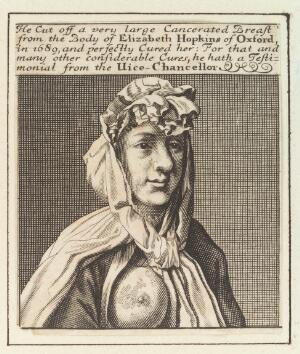 view Elizabeth Hopkins of Oxford, showing a breast with cancer which was removed by Sir William Read. Engraving by M. Burghers, ca. 1700.