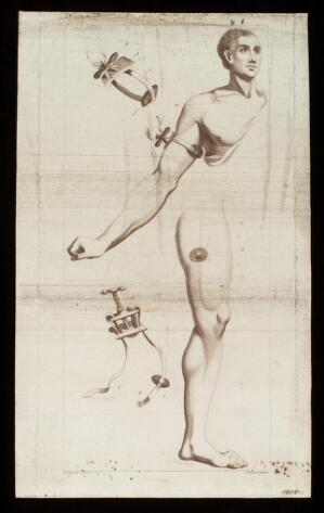 view Tourniquets: strap-operated and screw-operated, for the arm and thigh. Engraving by J. Newton after E. Edwards, 1783.