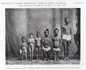"""view Types of """"Indian Dwarfism"""". front view"""