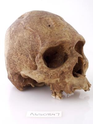view A human skull showing signs of Trepanning.