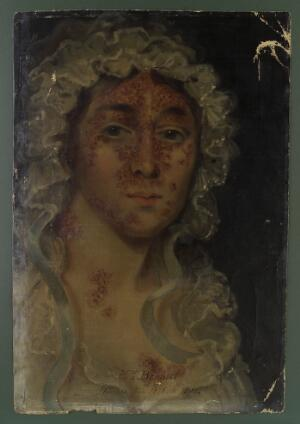 view Mrs Bennett, afflicted with a skin disease. Oil painting,