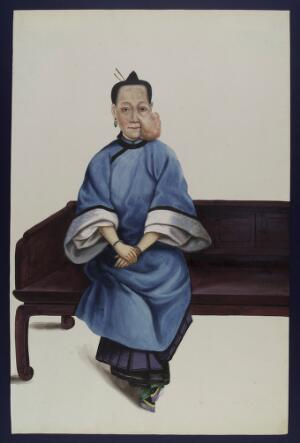 view A woman (Lo Wanshun) with a tumour on her left cheek. Gouache, 18--, after Lam Qua, 1836.