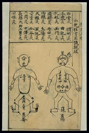 view Acu-moxa chart: Infantile convulsions, Chinese MS, c. 1911