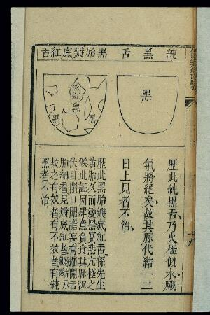 view Tongue morphology: Heitai biandi hongshe, Chinese woodcut