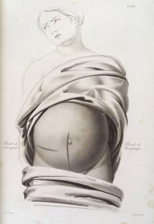 view Diagram showing incisions performed in caesarean operation
