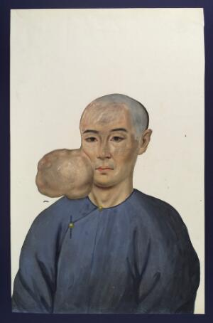 view A man (Chang Achum?), facing front, with a tumour on the right side of his face. Gouache, 18--, after Lam Qua, 1837.