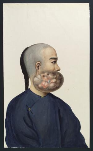 view A man (Leang Ashing), in profile, with a tumour on the right side of his face. Gouache, 18--, after Lam Qua, 1837.