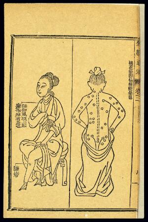 view Chinese woodcut: Abscesses -- 'cotton sore'