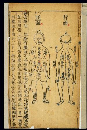 view Chinese woodcuts: Locations for applying ointments