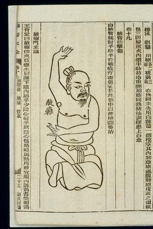 view Chinese woodcut: Axillary abscess