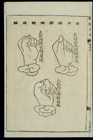 view Chinese woodcut: Prognosis by finger inspection
