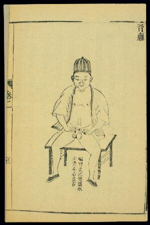 view Chinese woodcut: 'Kidney' abscess
