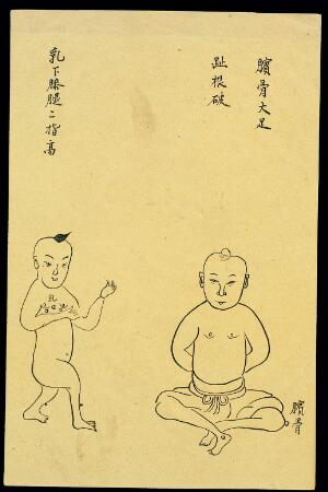 view C19 Chinese ink drawing: Boils on kneecap and under breast