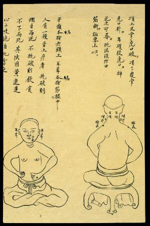 view C19 Chinese ink drawing: Location of various boils