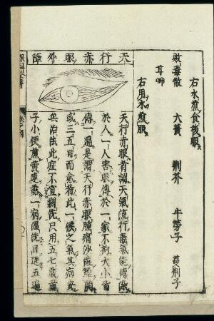 view Japanese/Chinese woodcut: Infectious 'red-eye' (chiyan)