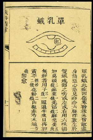 view Chinese C19 woodcut: Throat conditions, tonsillitis