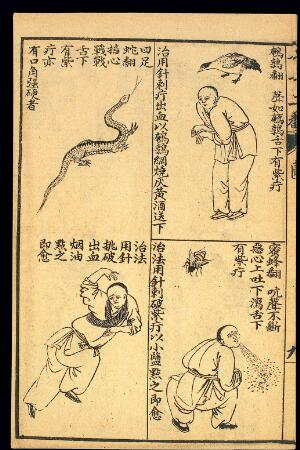 view Early C20 Chinese Lithograph: 'Fan' diseases