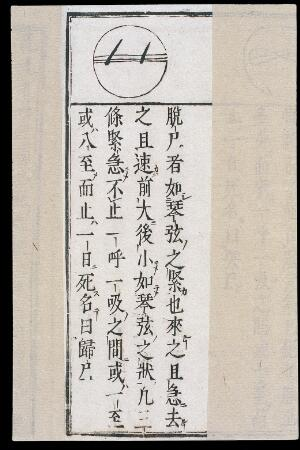 view Chinese/Japanese Pulse Image chart: Removing Door pulse