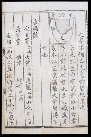view Chinese tongue diagnosis diagram: 'Baked centre' tongue'
