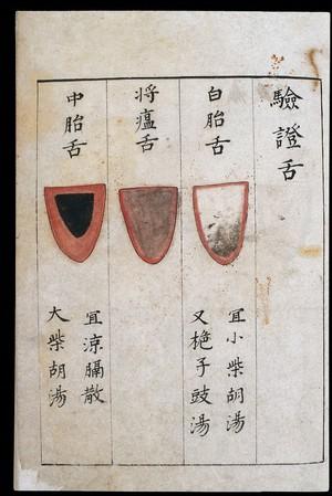 view C14 Chinese tongue diagnosis chart