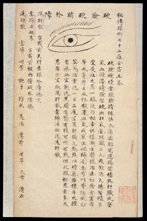 view Illustration from Ming Chinese ophthalmology text, Ms copy