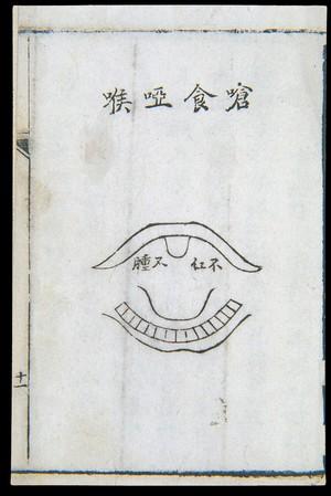 view C18 Chinese woodcut: Choking and hoarseness