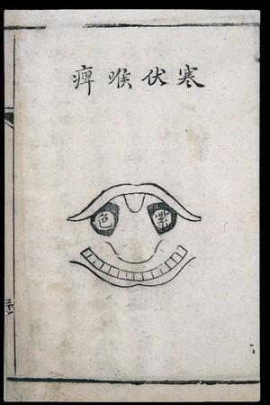 view C18 Chinese woodcut: Lurking-cold pharyngitis