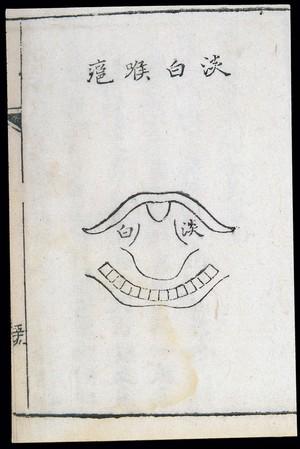 view C18 Chinese woodcut: Light white throat abscess