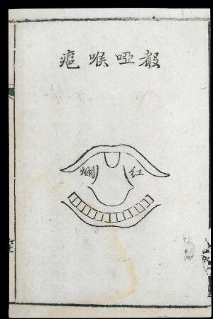 view C18 Chinese woodcut: Throat abscess with hoarse voice