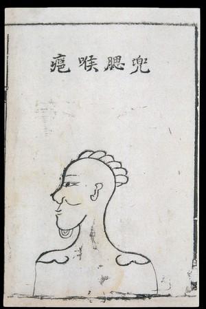 view C18 Chinese woodcut: Cheek-pouch throat abscess