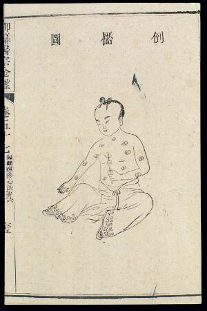 view Chinese C18: Paediatric pox - 'Inverted Dimple' pox